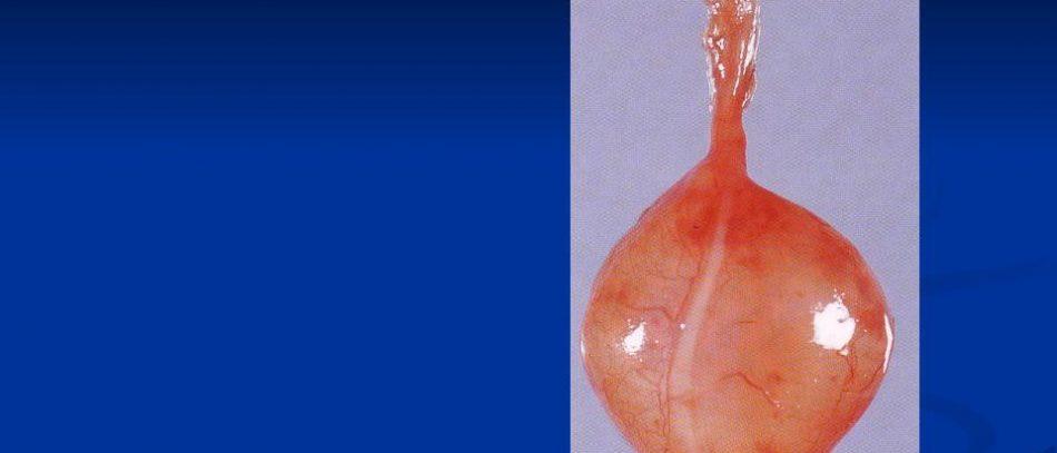 Опухоли периферических нервов