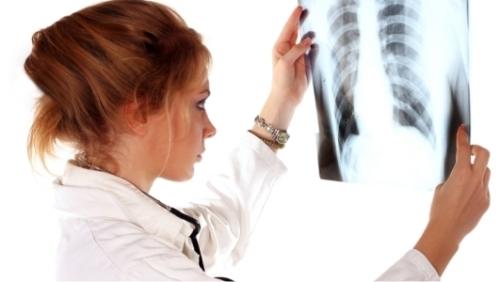 9 самых тревожных признаков рака легких
