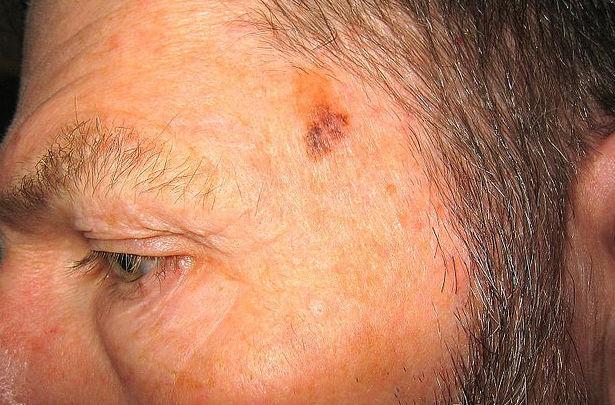 Криохирургия. Криохирургия для лечения немеланомного рака кожи и старческого кератоза.
