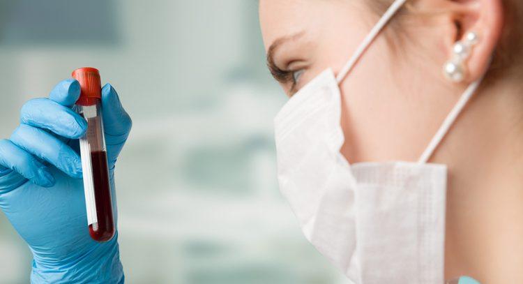 Анализ на HBsAg  — поверхностный антиген вируса гепатита В