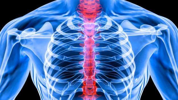 Вся правда об опухоли позвоночника. Общие понятия и лечение