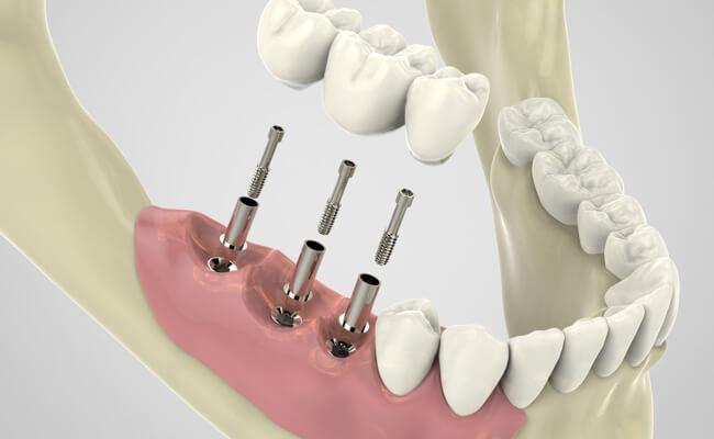 Зубной имплантат: процедура установки и отличие от протеза