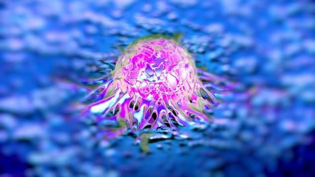 Новообразования, опухоль кишечника