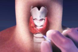 Чем опасна и как лечить фолликулярную опухоль щитовидной железы?