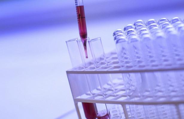 ВАвстралии ученые разработали детектор онкозаболеваний