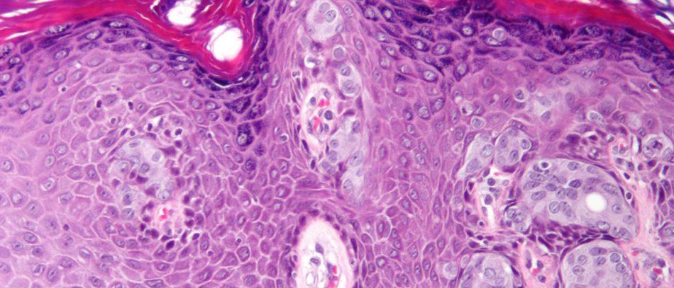 В курсе дела: что такое онкомаркеры?