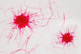 Ученые разработали лекарство отрака крови