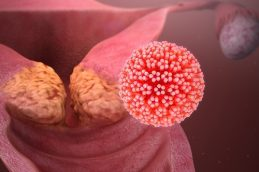 Диагноз, а не приговор: ранняя диагностика рака