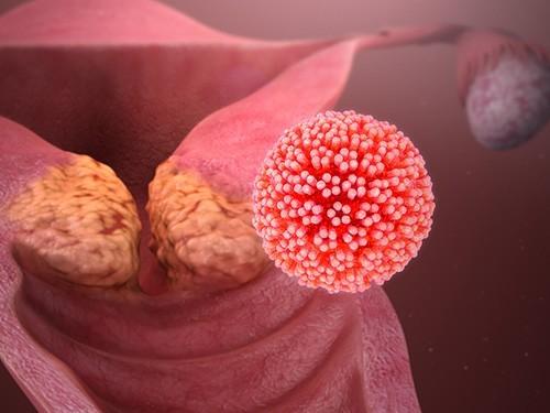 Рак шейки матки может стать исчезающей болезнью