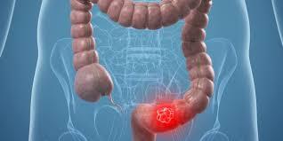 Рак. частота заболевания, его причины и лечение
