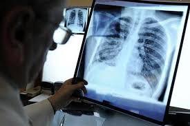 Выявление туберкулеза
