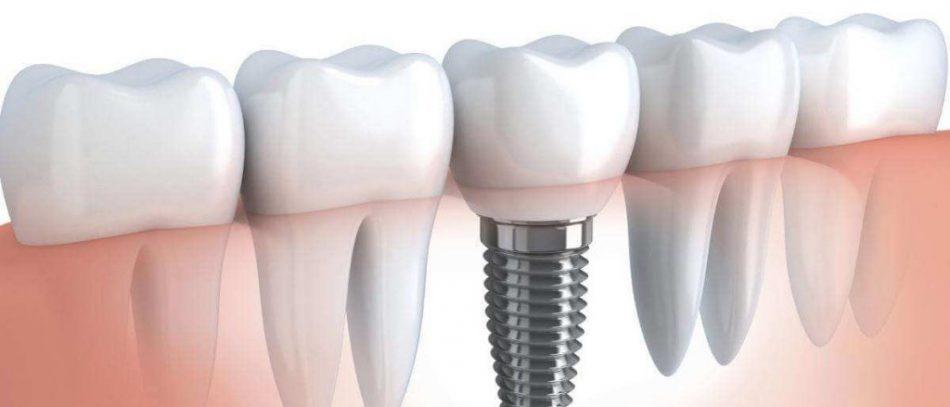 При каких показаниях проводится имплантация зубов?