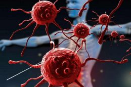 Рак шейки матки – стадии болезни