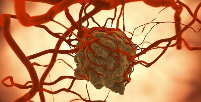 Стеатоз или жировой гепатоз печени