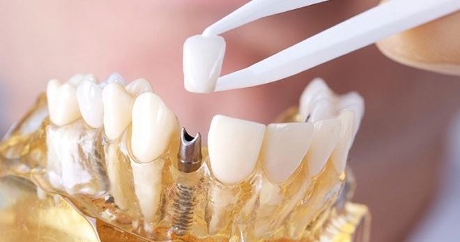Керамические коронки на зубы и особенности их установки