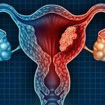 Опасность и причины онкологических заболеваний женской половой сферы