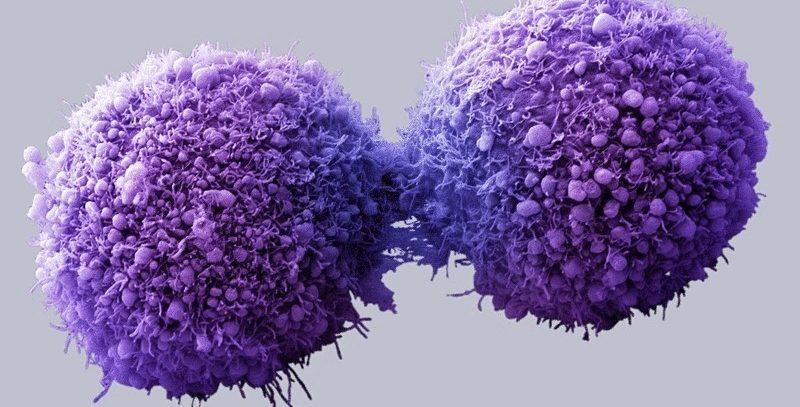 Центральный рак. Причины, симптомы и лечение