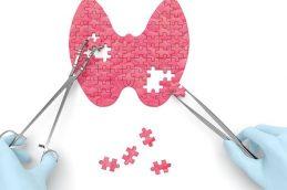 Классификация бетесда щитовидной железы