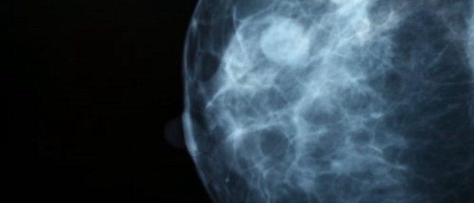 Филлоидные опухоли молочных желез часто диагностируются у женщин 40 — 60 лет