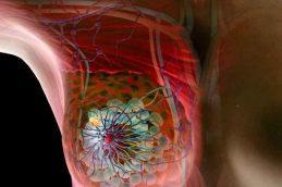Как предотвратить возникновение и развитие онкологии