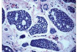 Существует ли связь между диабетом и раком поджелудочной железы?