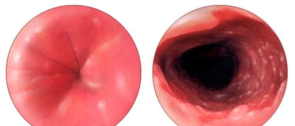 Пищевод Барретта — осложнение, которое предшествует раку пищевода