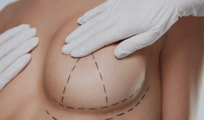Преимущества маммопластики