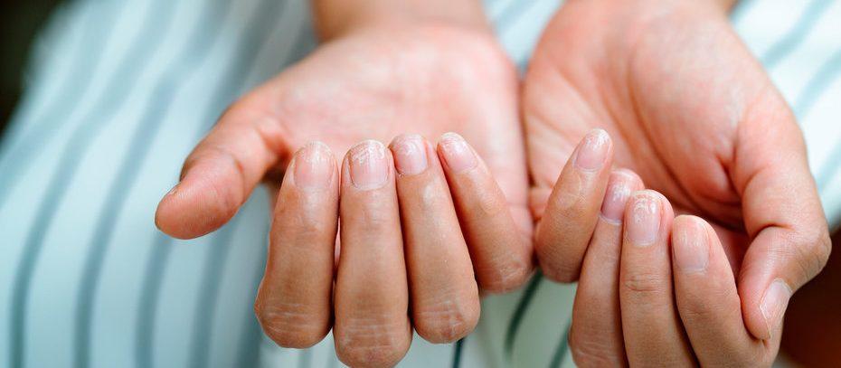 Меланома ногтя: симптомы опасного заболевания, которые нельзя пропустить