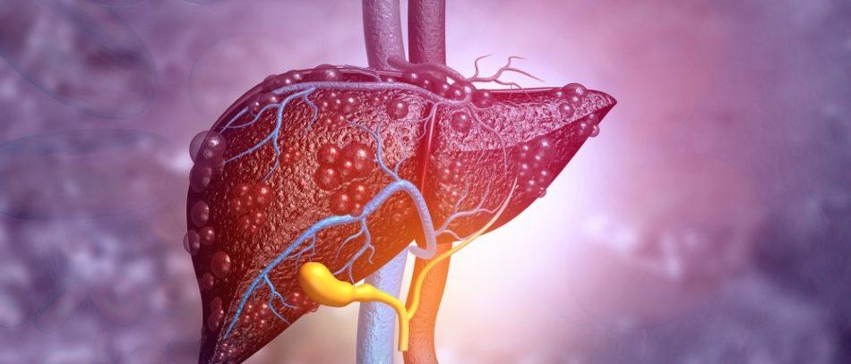 Ученые нашли «выключатель» фиброза печени