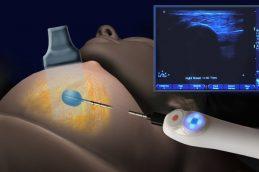 Биопсия молочных желез