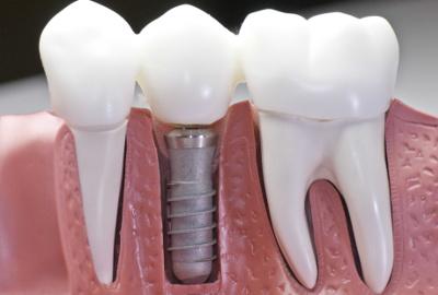 Имплантация в стоматологии