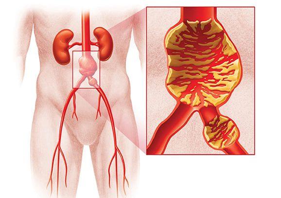 Атеросклероз брюшной аорты, что это такое, симптомы и лечение