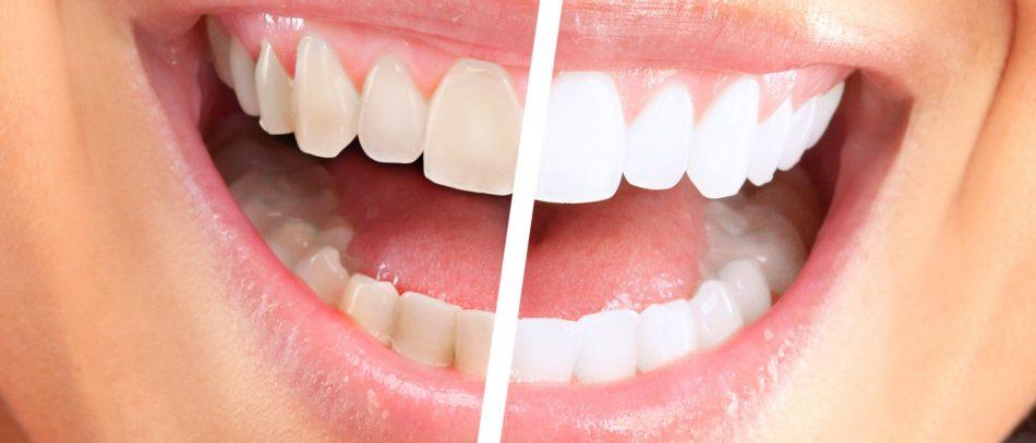 Красивая улыбка: стоит ли отбеливать зубы?
