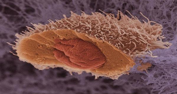 Гормонозависимые новообразования: генетическая предрасположенность к их развитию