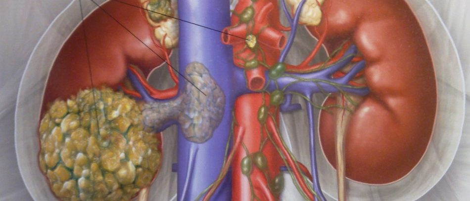 Рак почки симптомы. Признаки онкологии