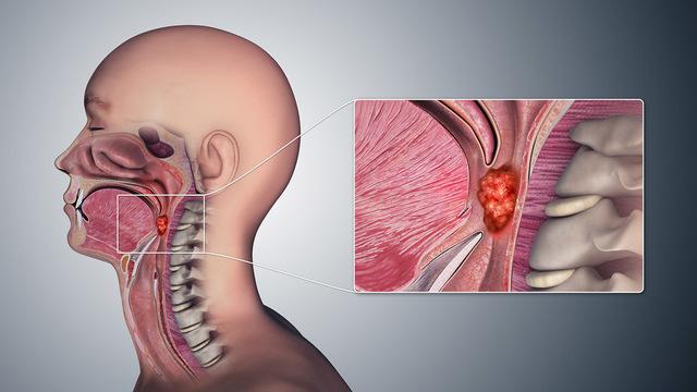 Рак головы и шеи: почему не надо бояться врачей?