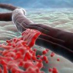 Новые сведения дают надежду людям с тяжелой формой гемофилии