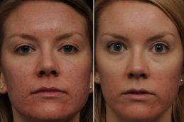 Лазерная коррекция проблем с кожей