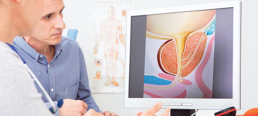 Рак простаты: причины развития, симптомы, диагностика, лечение