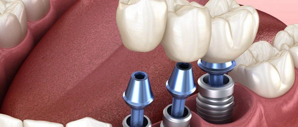 Чем заменить имплантанты зубов