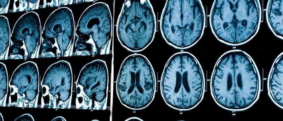 Дорого ли делать МРТ головного мозга: цена в СПб