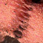 Новый препарат от рака простаты ипатасертиб ингибитор AKT показал свою эффективность