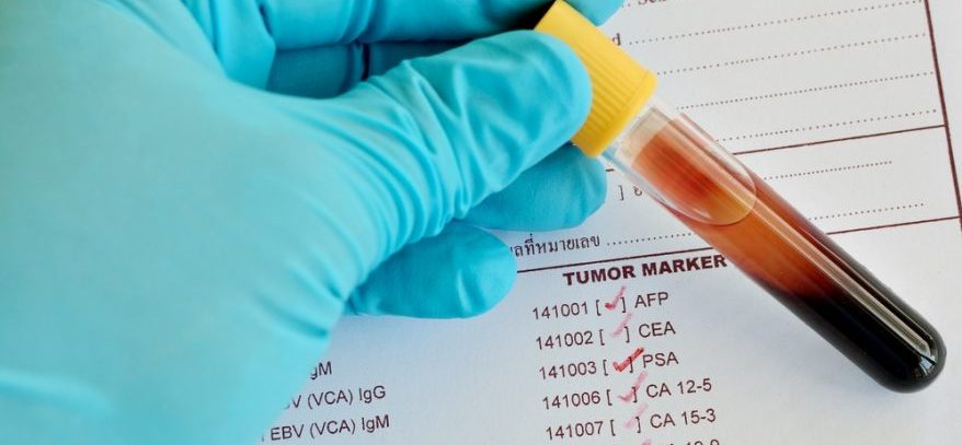 Онкомаркеры: что показывает анализ крови?