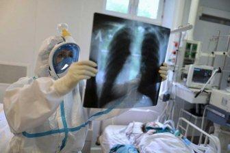 Врач назвал категорию людей, у которых сложно отличить пневмонию от рака легких
