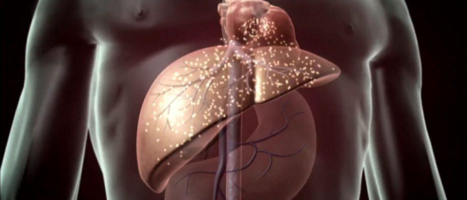 Цирроз печени: симптомы
