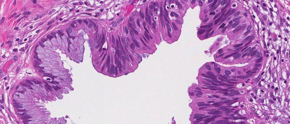 Аденокарцинома матки
