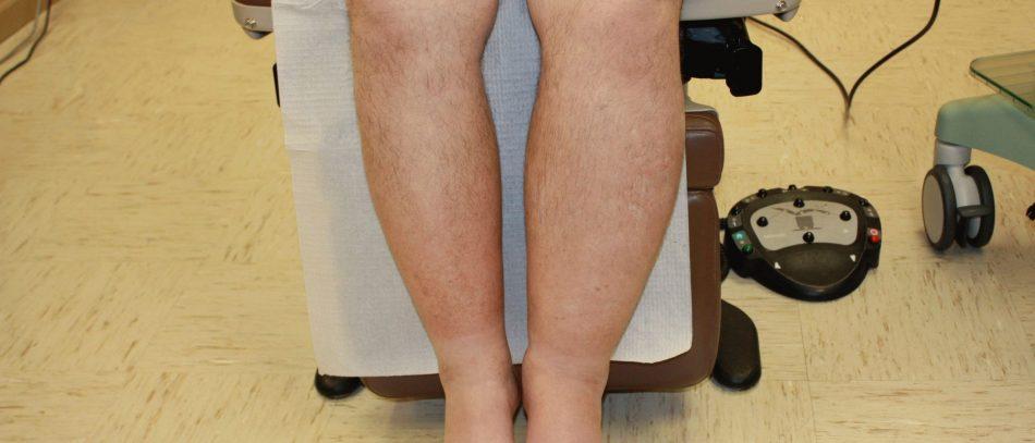 Как вены на ногах пострадали от удаленки — и что с этим делать