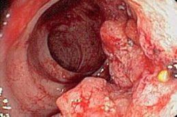 Какие симптомы бывают у рака прямой кишки на ранней стадии?
