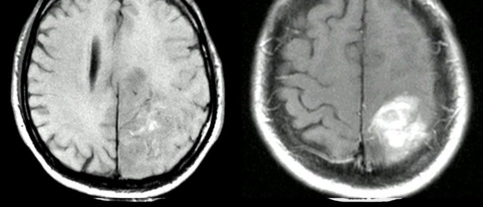 Глиобластома. Олигодендроглиома