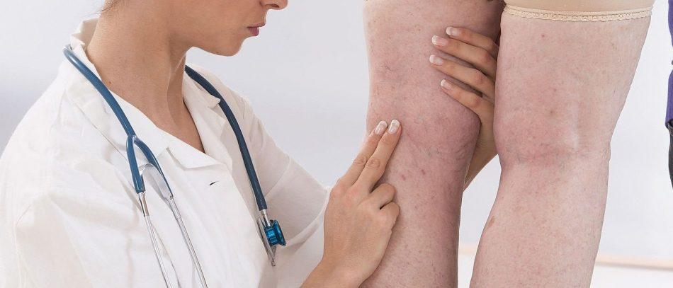 Врачи выявили, что боль в ногах может быть симптомом рака